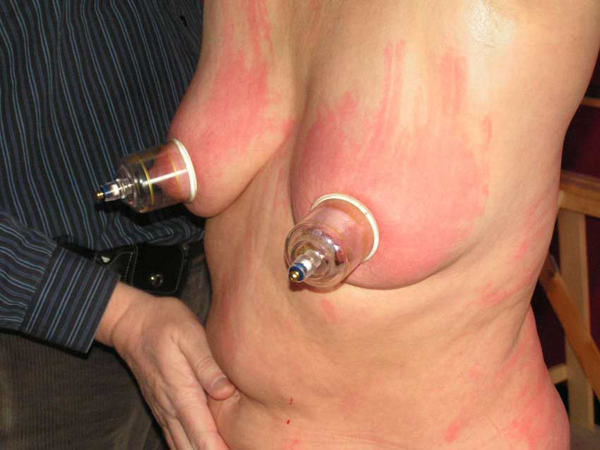 Bdsm suction cups