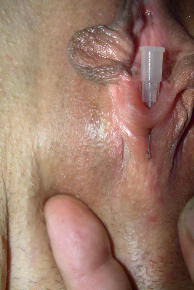 Dangers of clit piercing