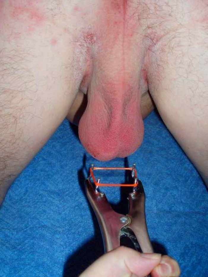 Electric cock and ball torture