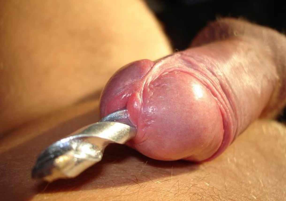 Укол в пенис, Укол в член: инъекции гиалуроновой кислоты и ботокса 13 фотография